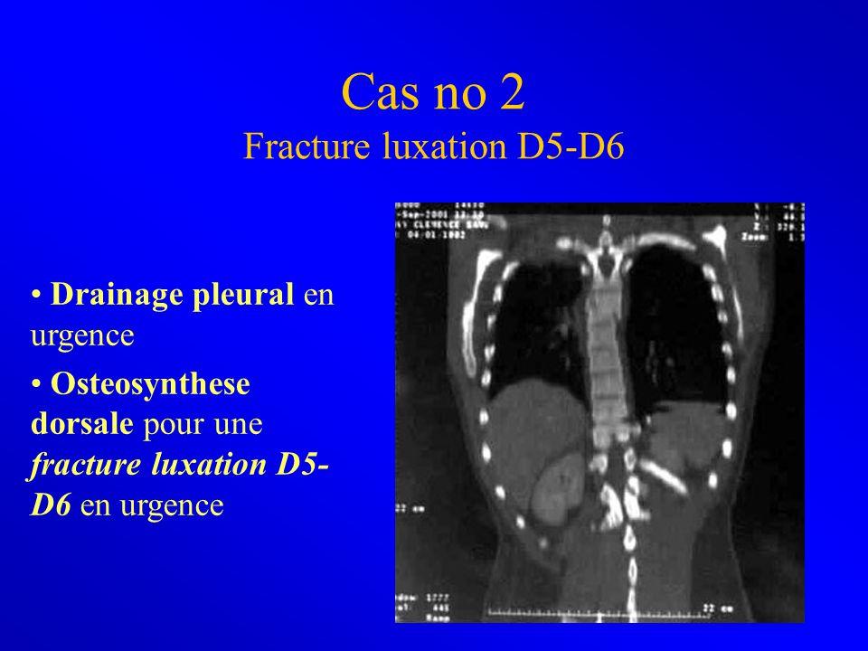Cas no 2 Fracture luxation D5-D6
