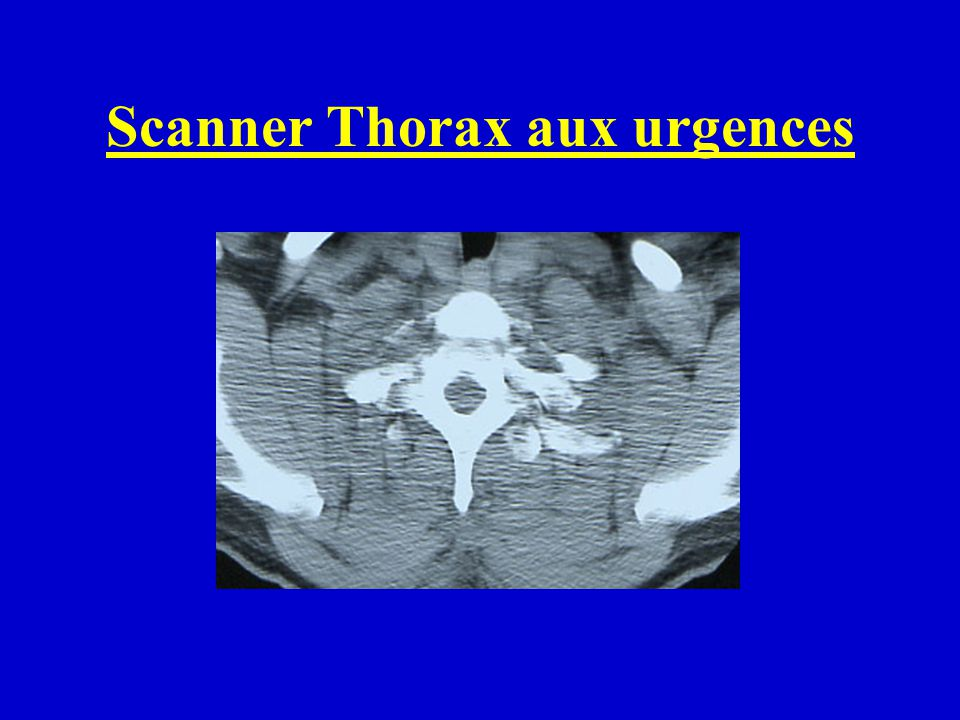Scanner Thorax aux urgences