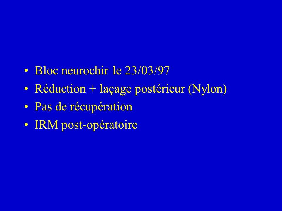 Bloc neurochir le 23/03/97 Réduction + laçage postérieur (Nylon) Pas de récupération.