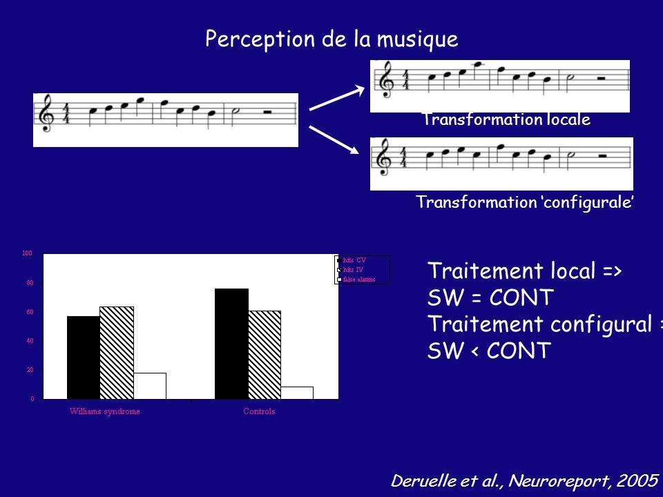 Perception de la musique