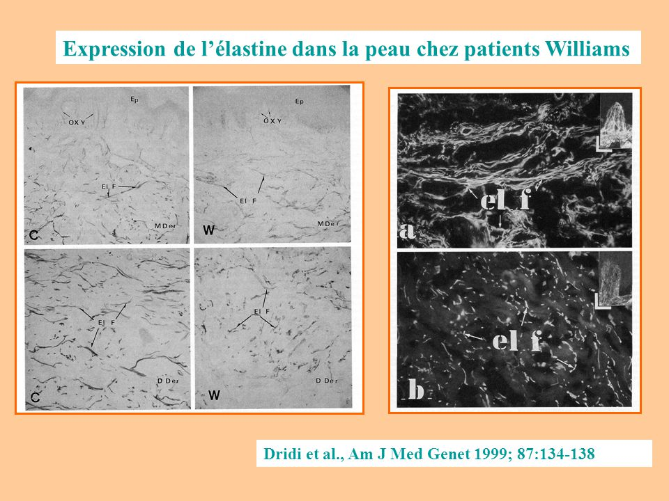 Expression de l'élastine dans la peau chez patients Williams