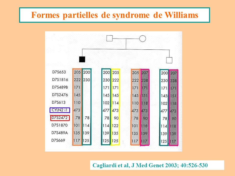 Formes partielles de syndrome de Williams