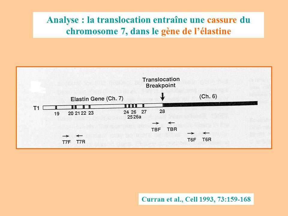 Analyse : la translocation entraîne une cassure du chromosome 7, dans le gène de l'élastine