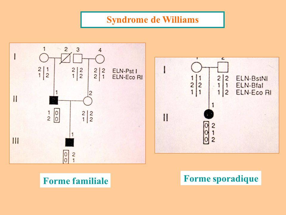 Syndrome de Williams Forme sporadique Forme familiale