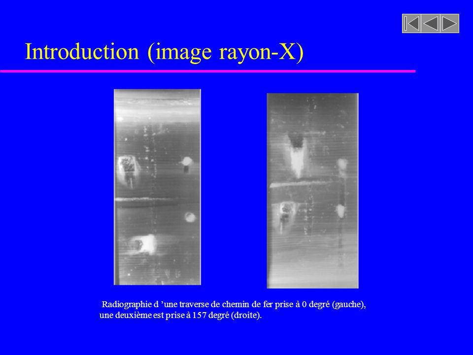 Introduction (image rayon-X)