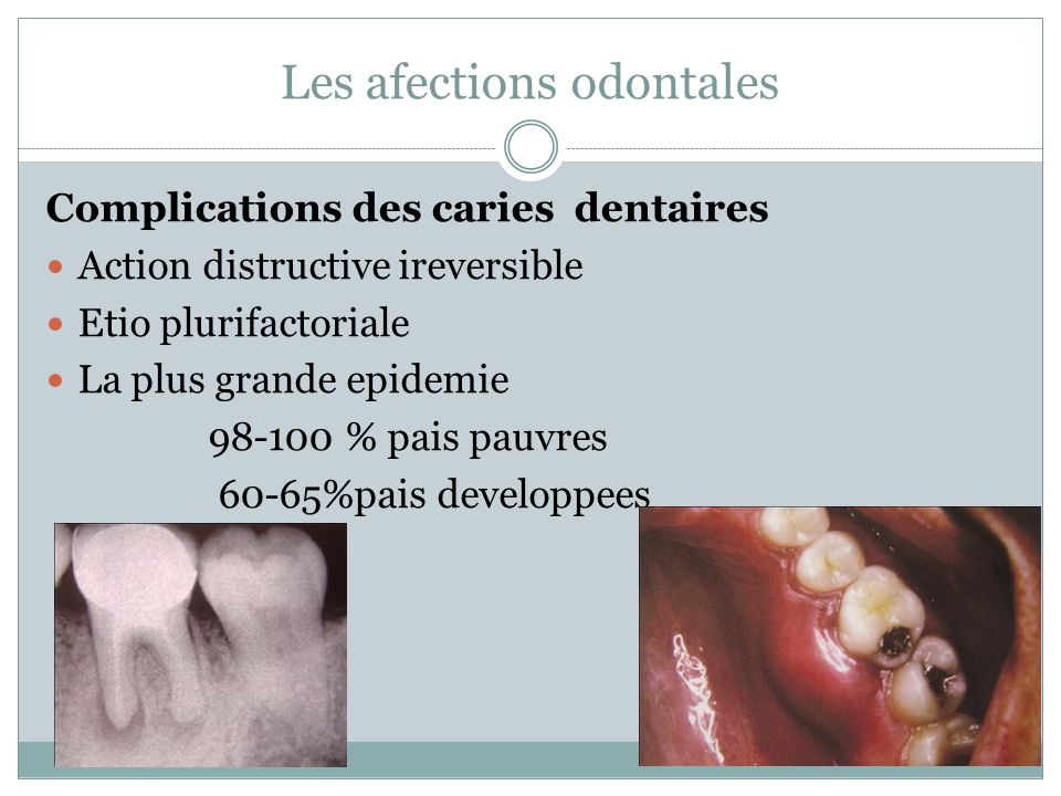 Les afections odontales
