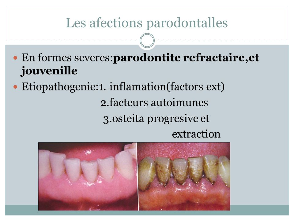 Les afections parodontalles