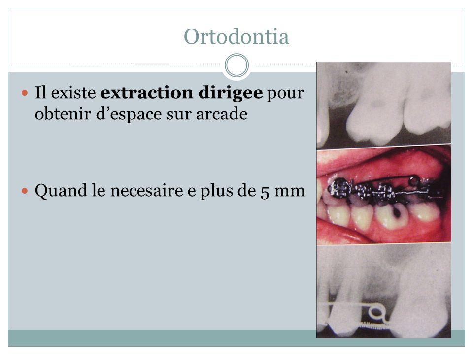 Ortodontia Il existe extraction dirigee pour obtenir d'espace sur arcade.