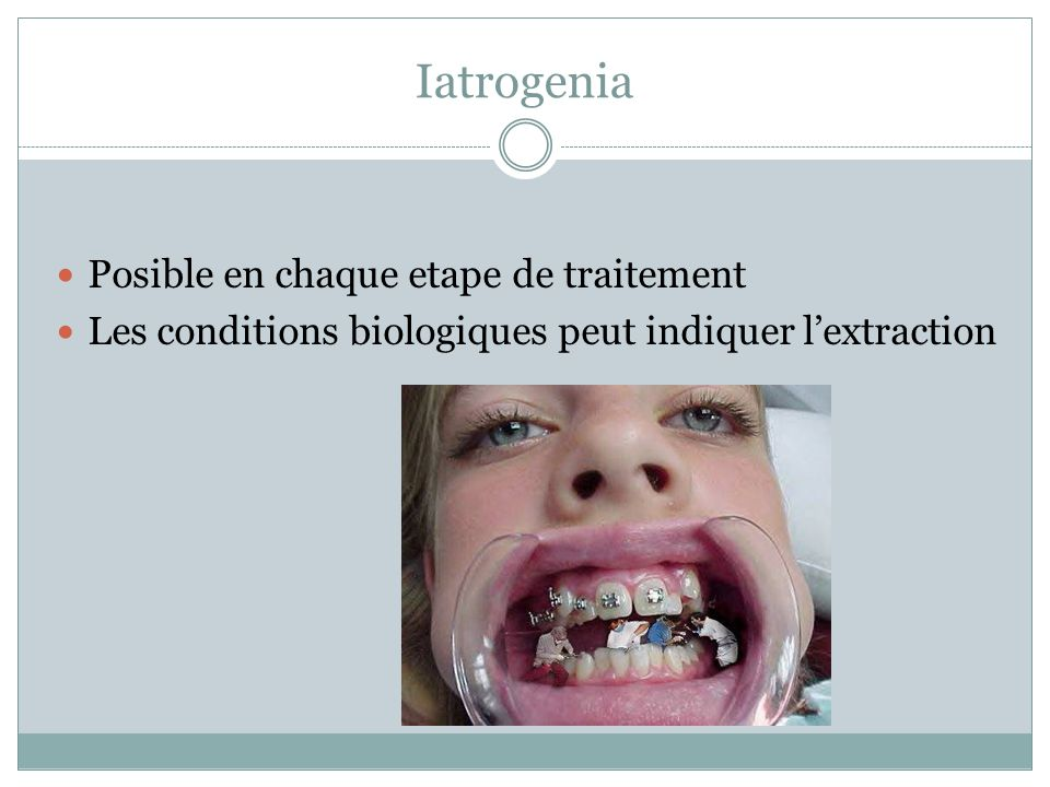 Iatrogenia Posible en chaque etape de traitement