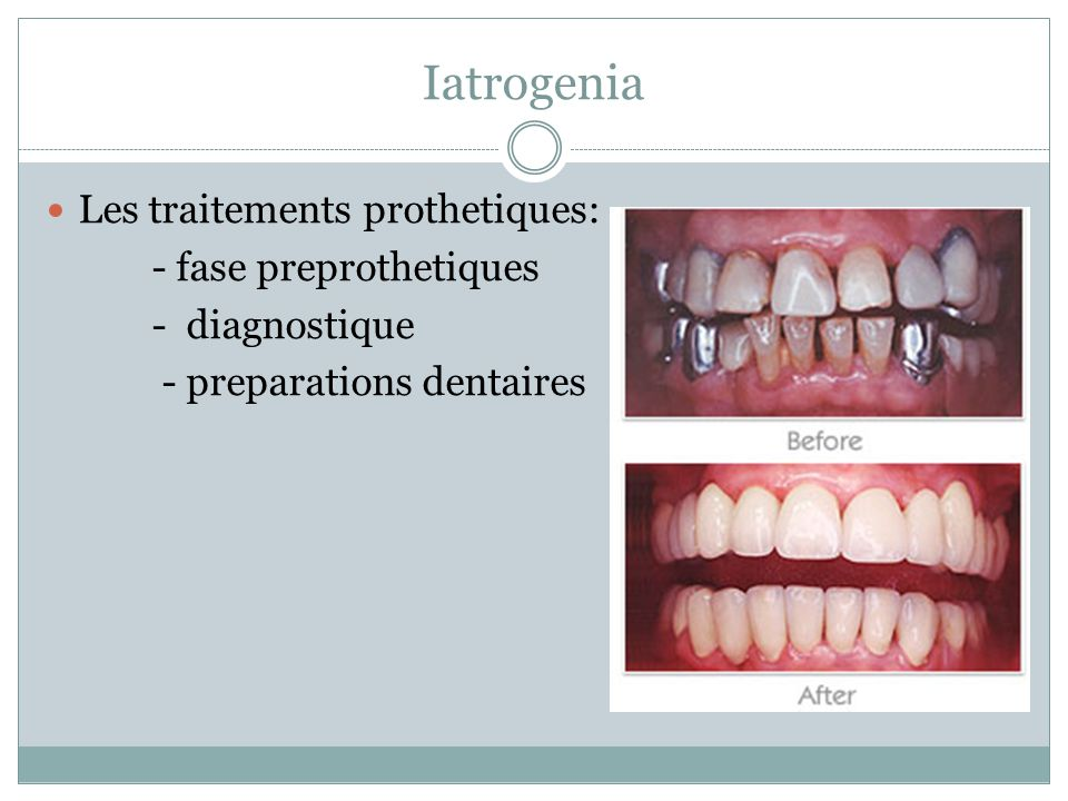 Iatrogenia Les traitements prothetiques: - fase preprothetiques