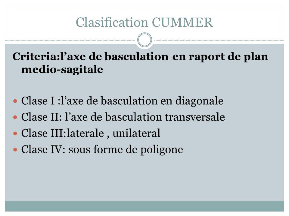 Clasification CUMMER Clase I :l'axe de basculation en diagonale