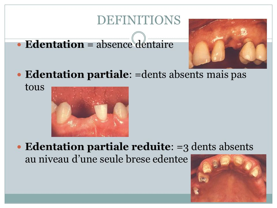 DEFINITIONS Edentation = absence dentaire