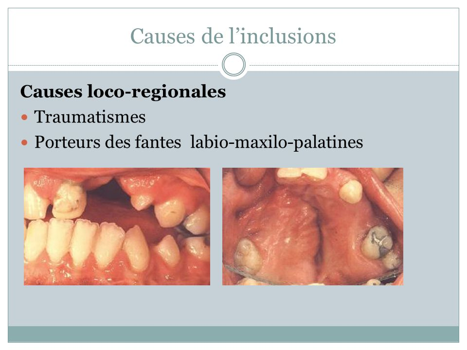 Causes de l'inclusions