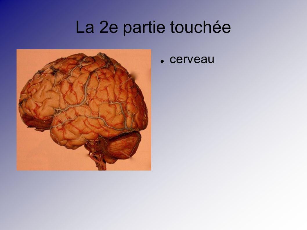 La 2e partie touchée cerveau