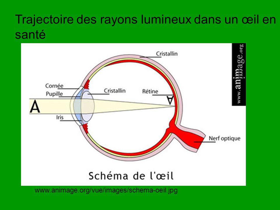 Trajectoire des rayons lumineux dans un œil en santé