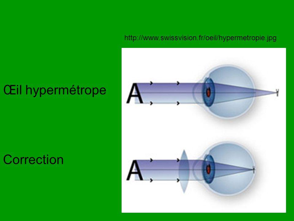 Œil hypermétrope Correction
