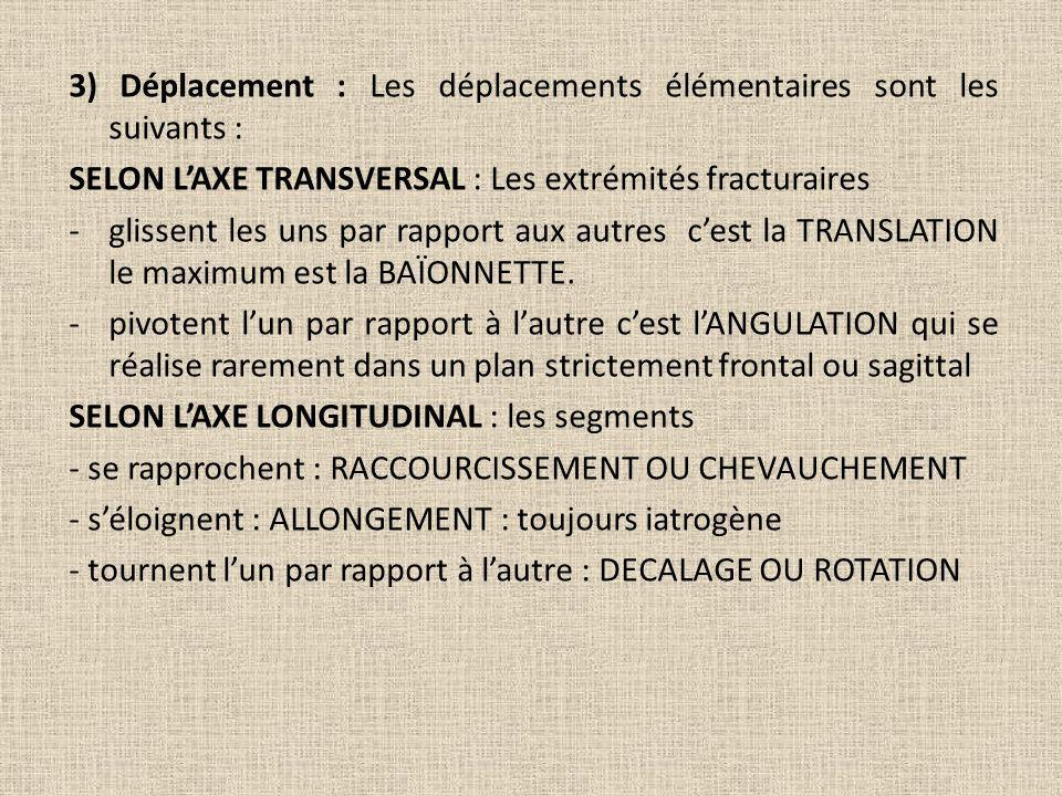 3) Déplacement : Les déplacements élémentaires sont les suivants :