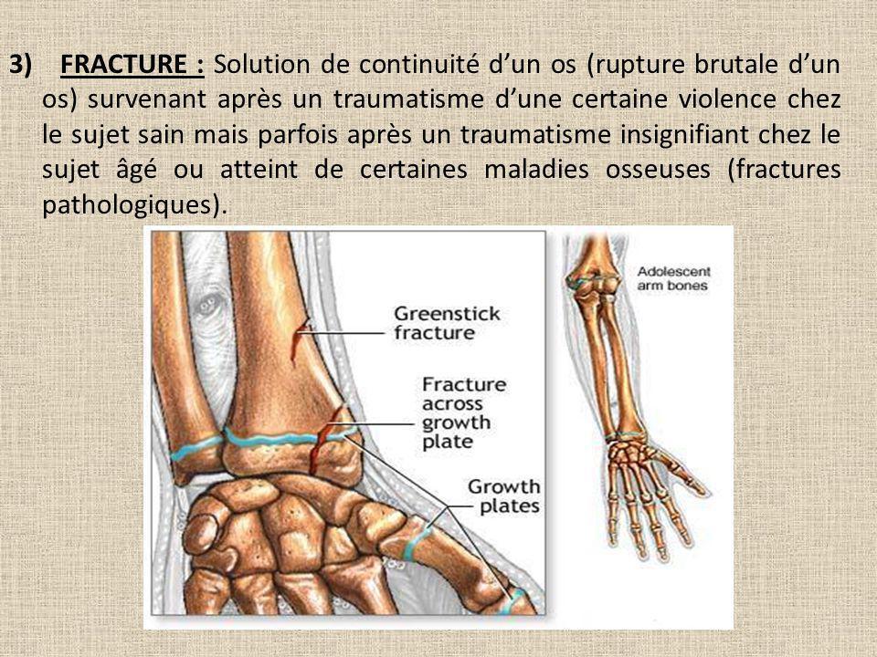 3) FRACTURE : Solution de continuité d'un os (rupture brutale d'un os) survenant après un traumatisme d'une certaine violence chez le sujet sain mais parfois après un traumatisme insignifiant chez le sujet âgé ou atteint de certaines maladies osseuses (fractures pathologiques).