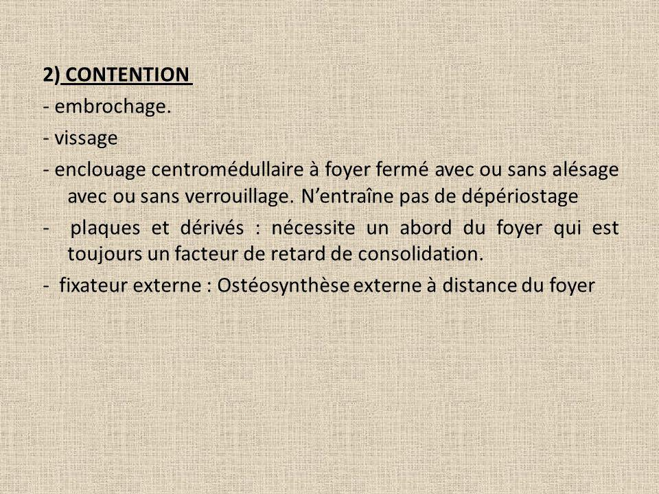 2) CONTENTION - embrochage