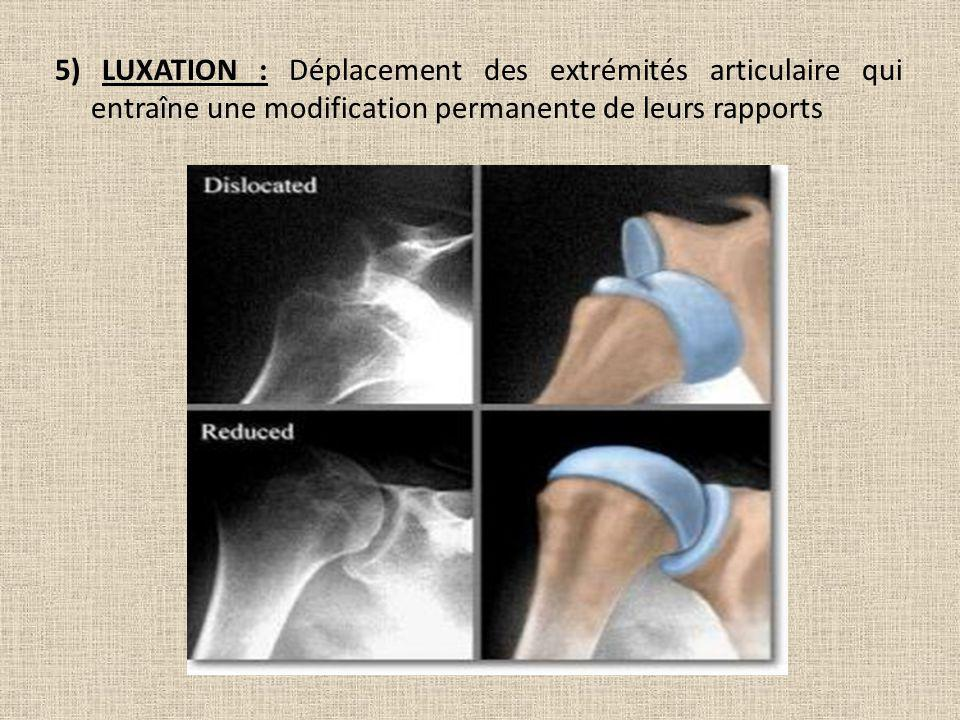 5) LUXATION : Déplacement des extrémités articulaire qui entraîne une modification permanente de leurs rapports