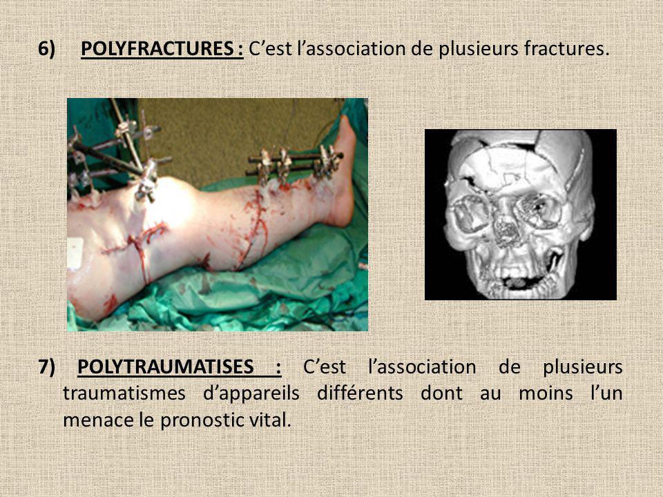 6) POLYFRACTURES : C'est l'association de plusieurs fractures