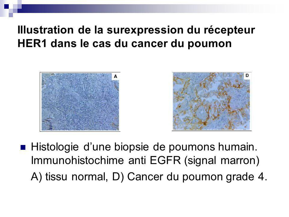 Illustration de la surexpression du récepteur HER1 dans le cas du cancer du poumon