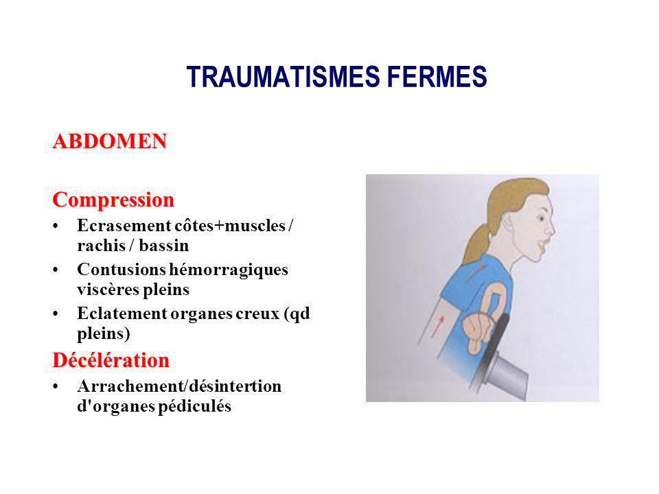 TRAUMATISMES FERMES ABDOMEN Compression Décélération