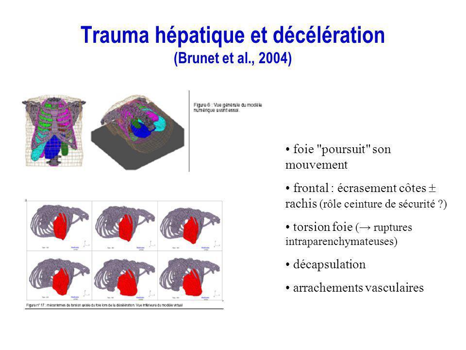 Trauma hépatique et décélération (Brunet et al., 2004)