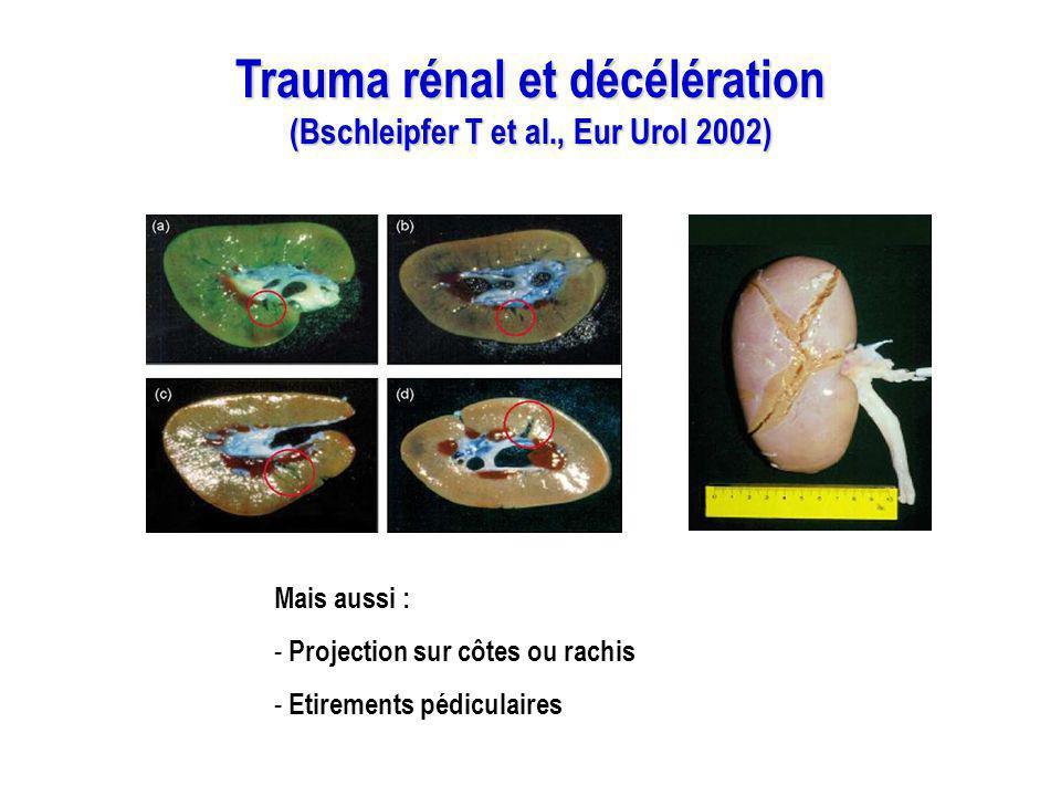 Trauma rénal et décélération (Bschleipfer T et al., Eur Urol 2002)