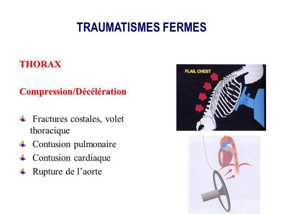 TRAUMATISMES FERMES THORAX Compression/Décélération
