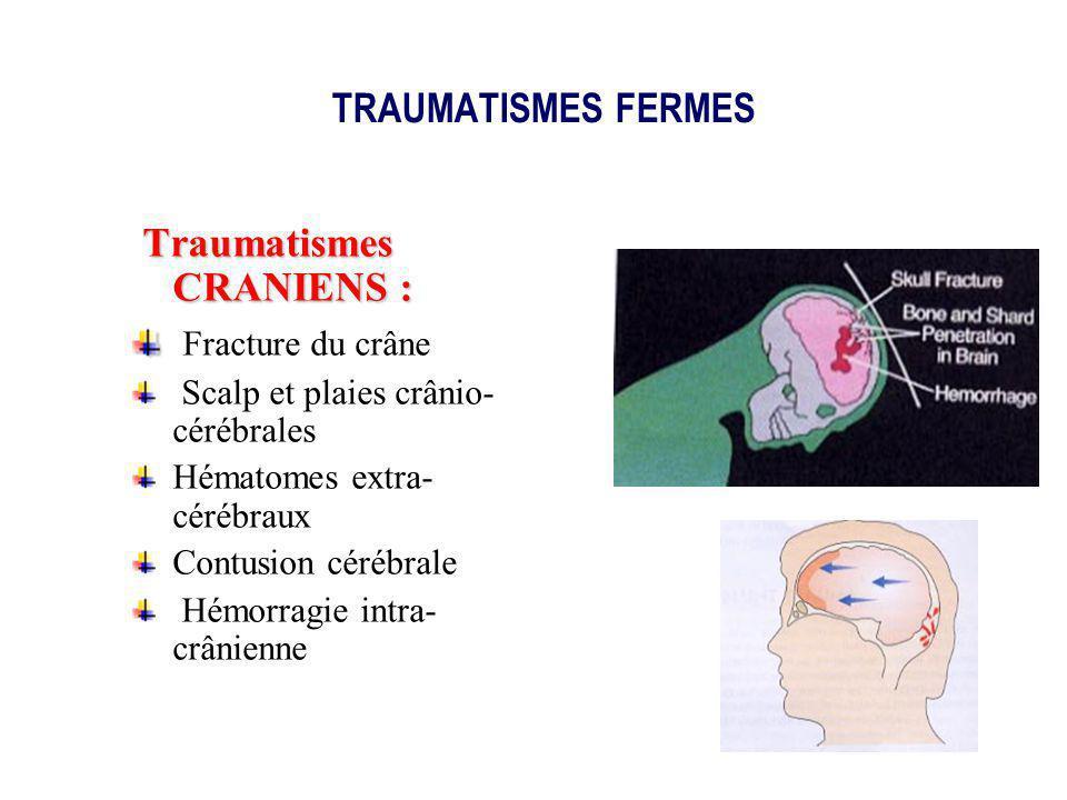Traumatismes CRANIENS : Fracture du crâne