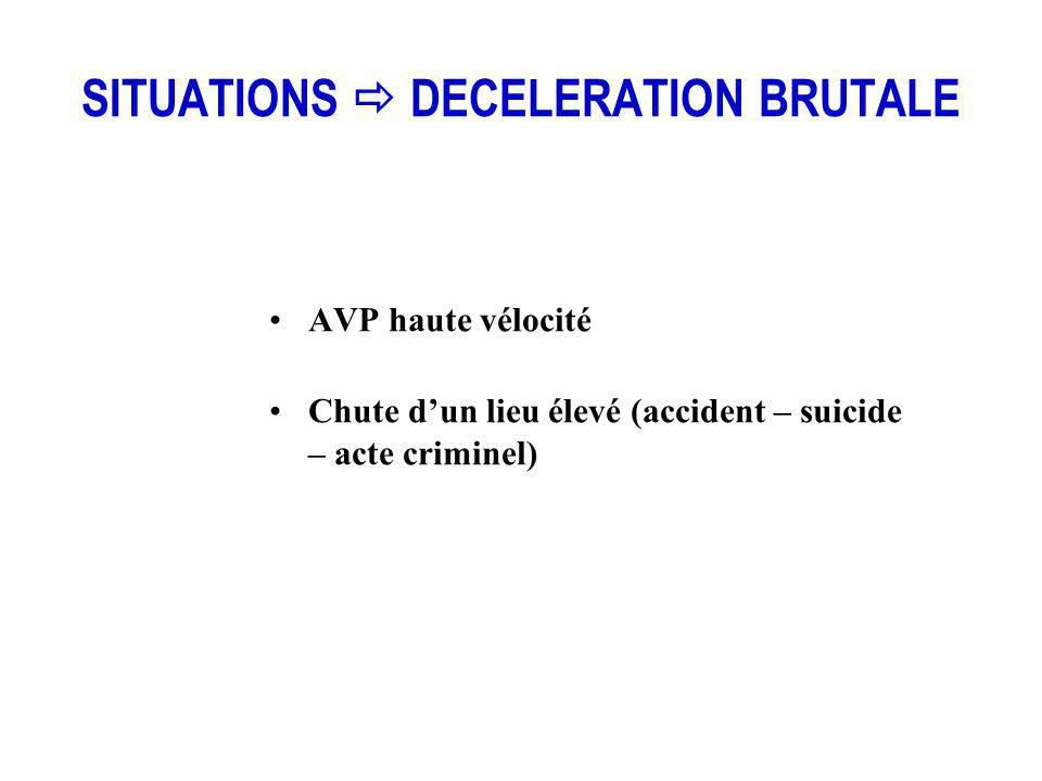 SITUATIONS  DECELERATION BRUTALE