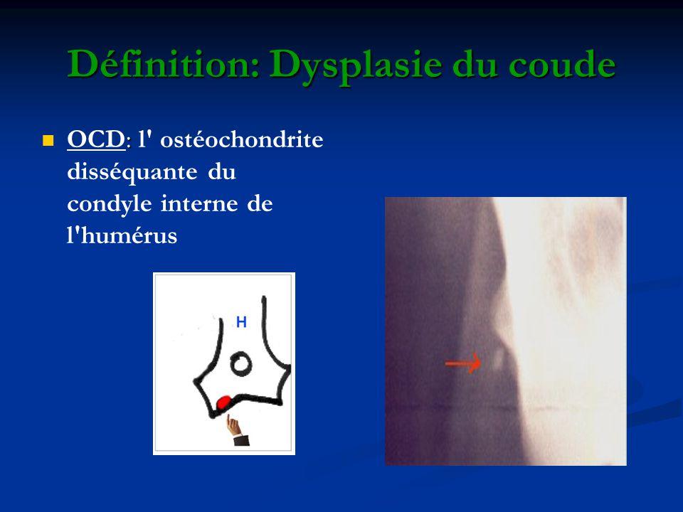 Définition: Dysplasie du coude