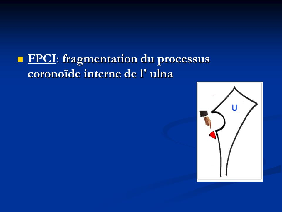 FPCI: fragmentation du processus coronoïde interne de l ulna