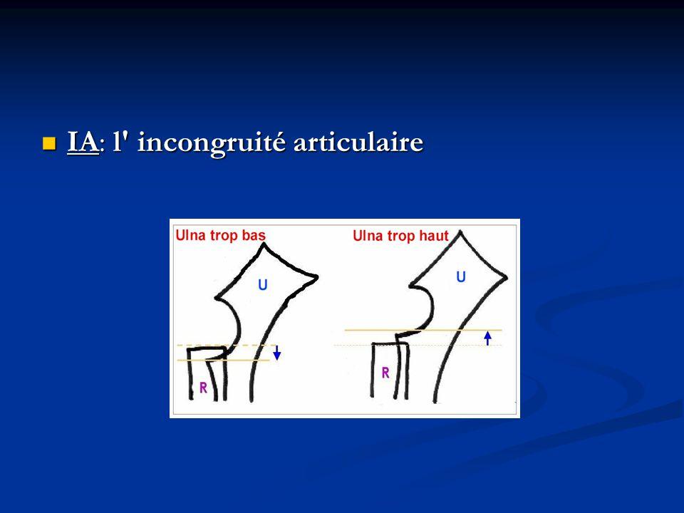 IA: l incongruité articulaire