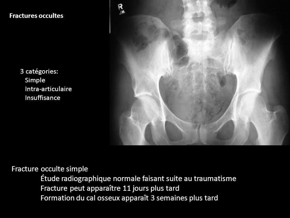 Fracture peut apparaître 11 jours plus tard