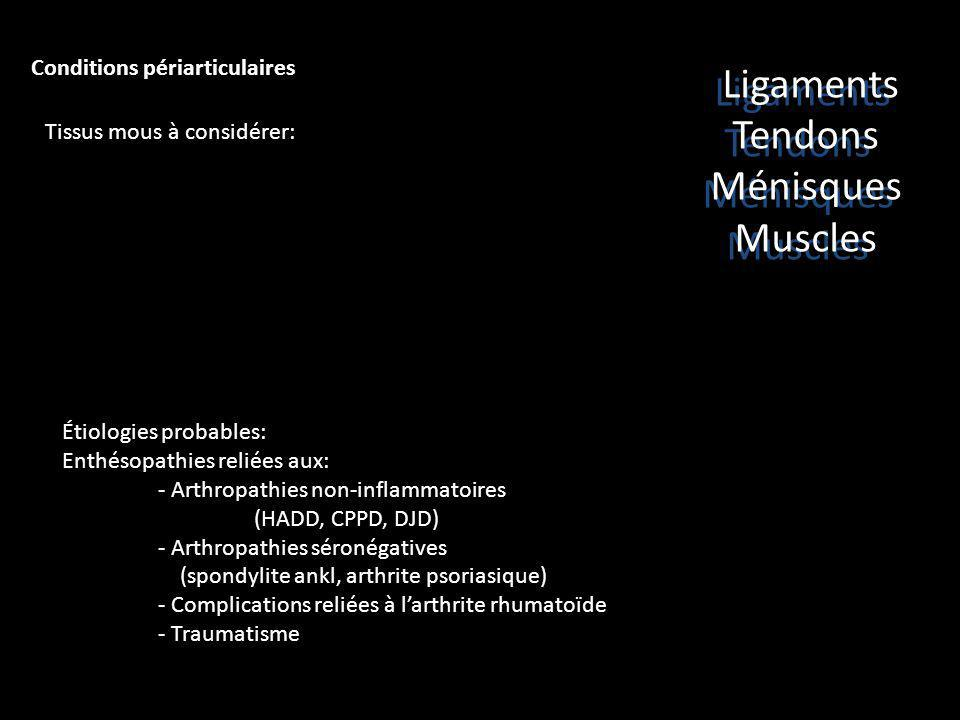 Ligaments Tendons Ménisques Muscles Conditions périarticulaires
