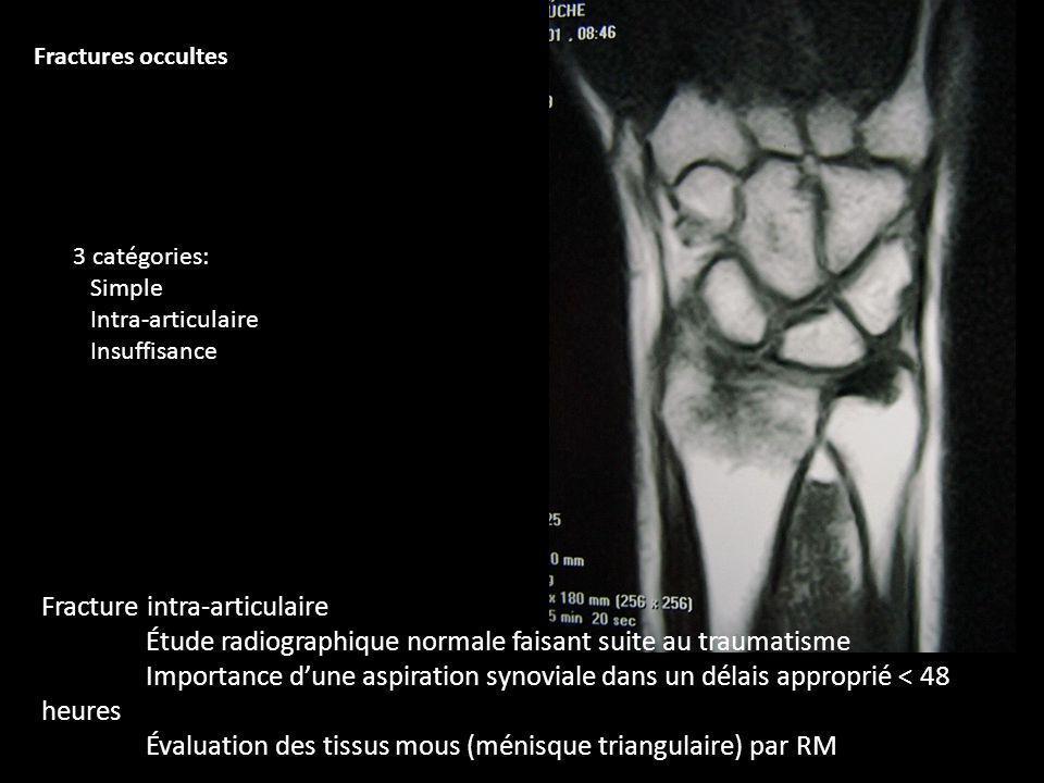 Évaluation des tissus mous (ménisque triangulaire) par RM