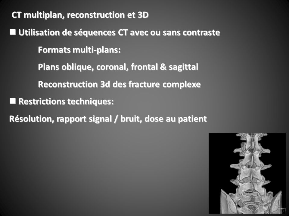 CT multiplan, reconstruction et 3D