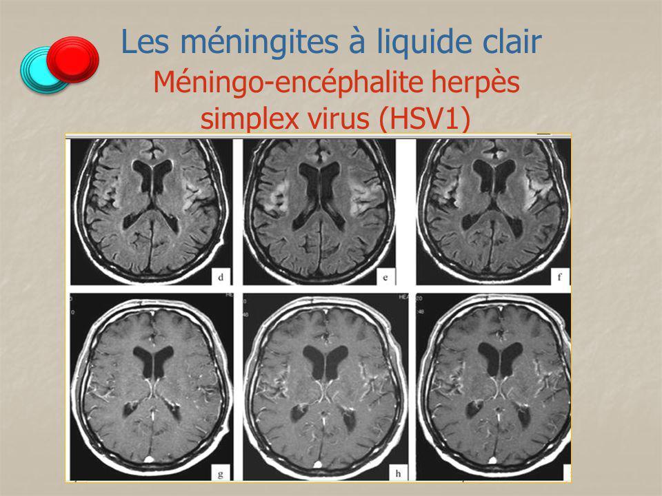 Les méningites à liquide clair Méningo-encéphalite herpès simplex virus (HSV1)