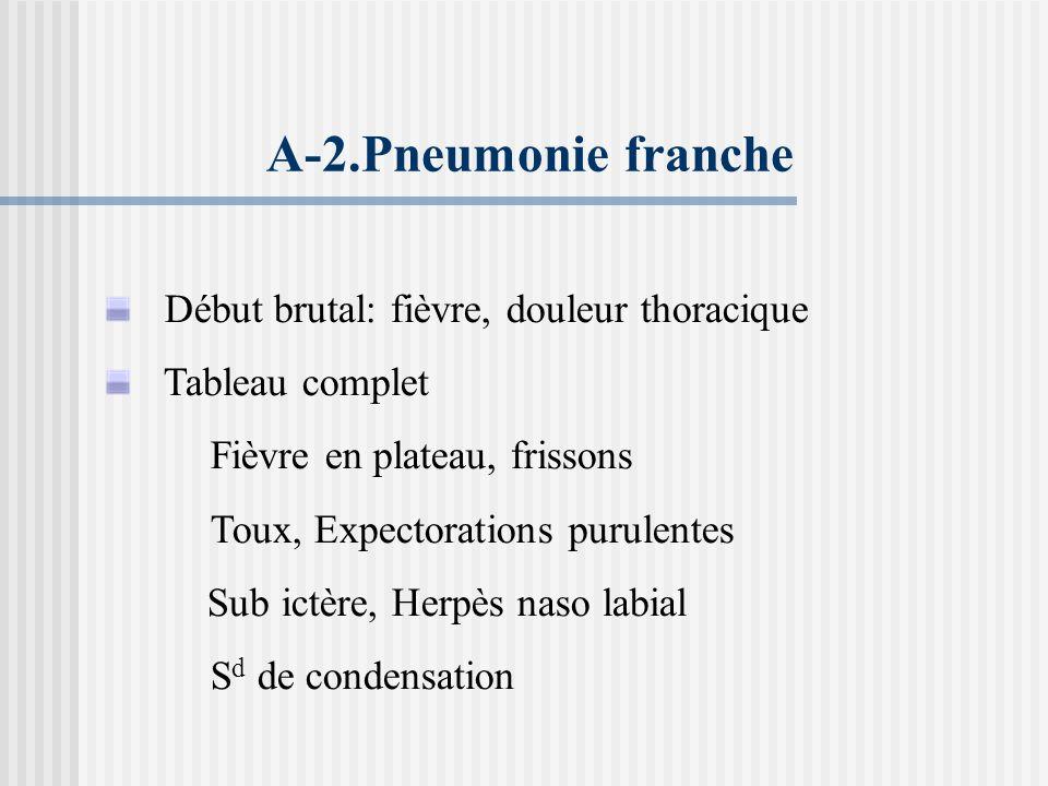 A-2.Pneumonie franche Début brutal: fièvre, douleur thoracique