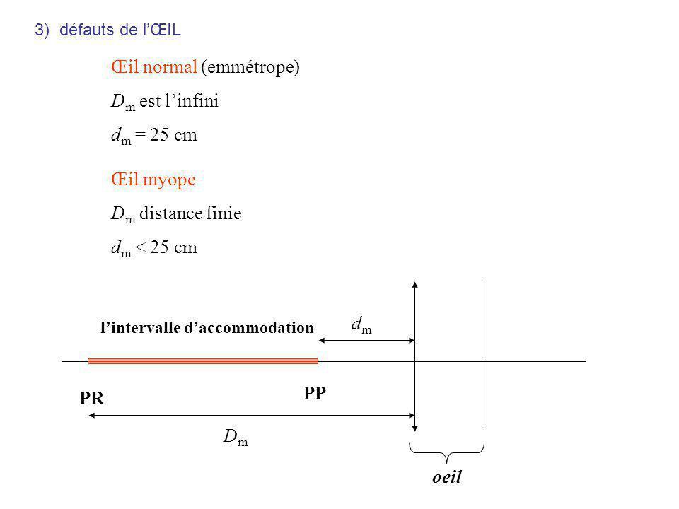 Œil normal (emmétrope) Dm est l'infini dm = 25 cm