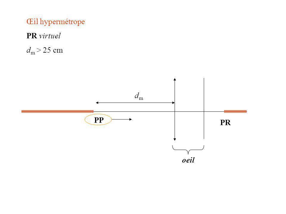 Œil hypermétrope PR virtuel dm > 25 cm oeil PP PR dm