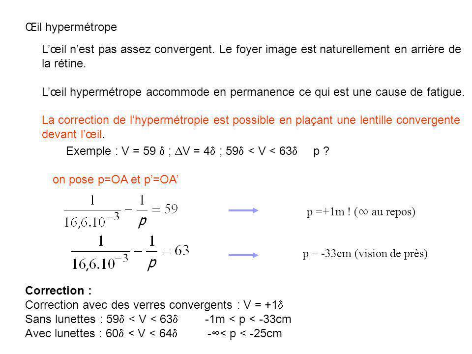 Exemple : V = 59 d ; DV = 4d ; 59d < V < 63d p