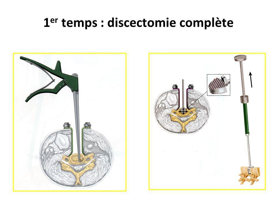 1er temps : discectomie complète