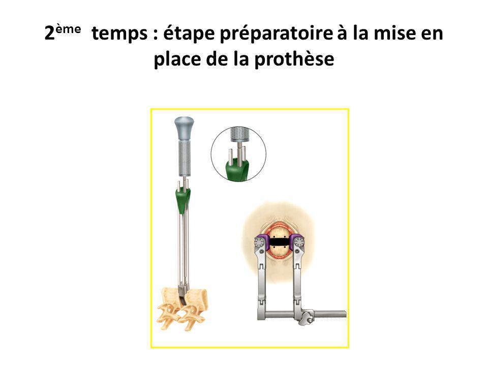 2ème temps : étape préparatoire à la mise en place de la prothèse