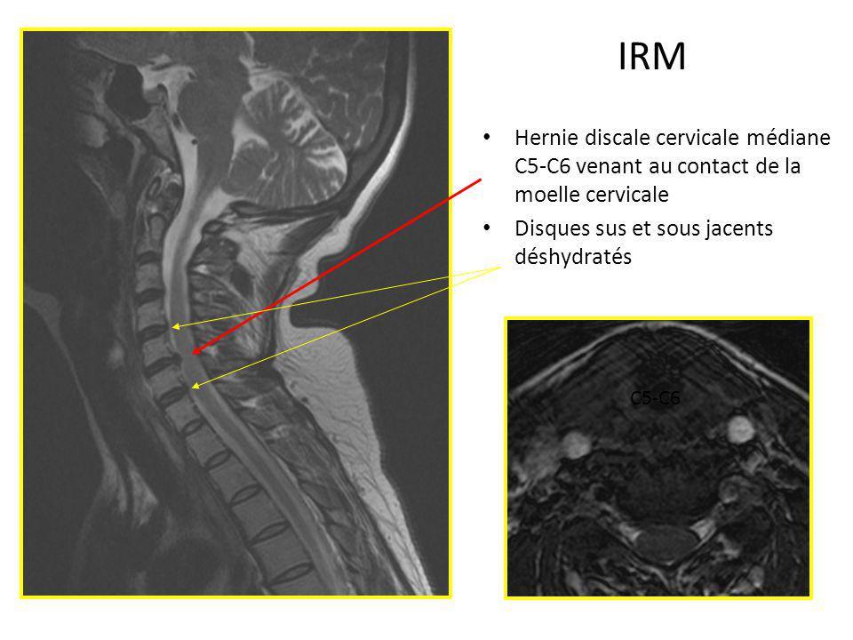 diagnostic et traitement chirurgical de la hernie discale cervicale ppt video online t l charger. Black Bedroom Furniture Sets. Home Design Ideas