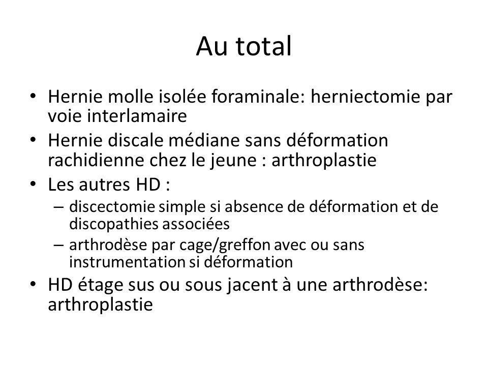 Au total Hernie molle isolée foraminale: herniectomie par voie interlamaire.