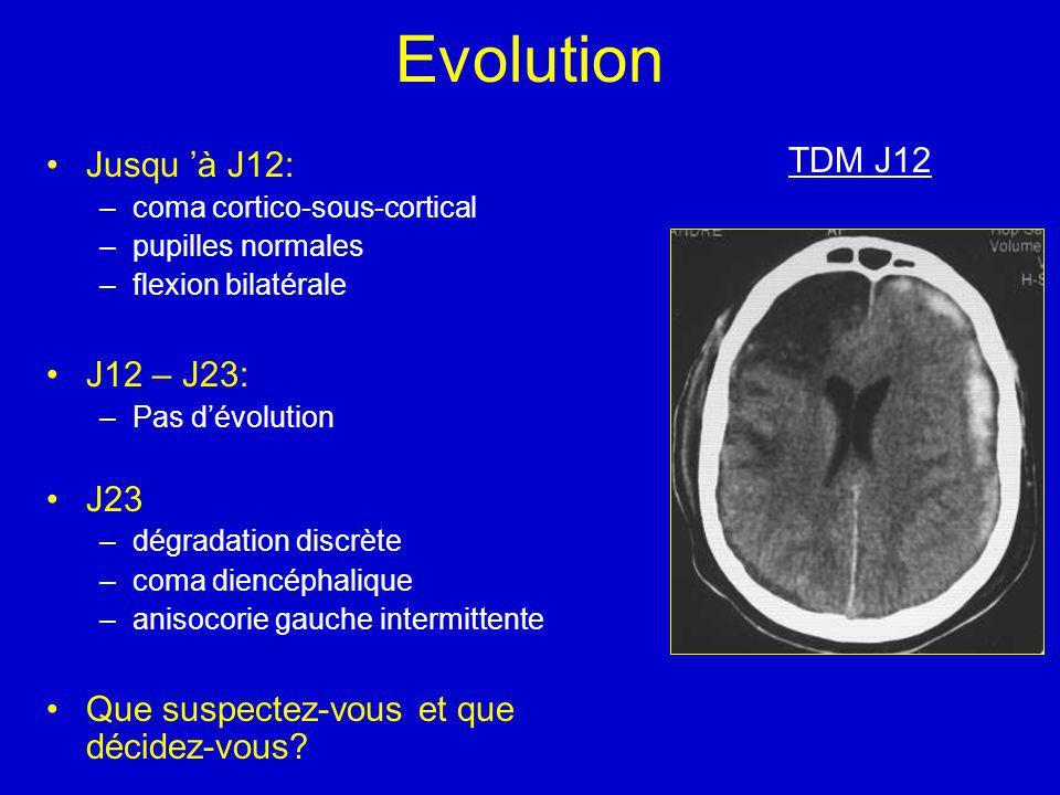 Evolution TDM J12 Jusqu 'à J12: J12 – J23: J23