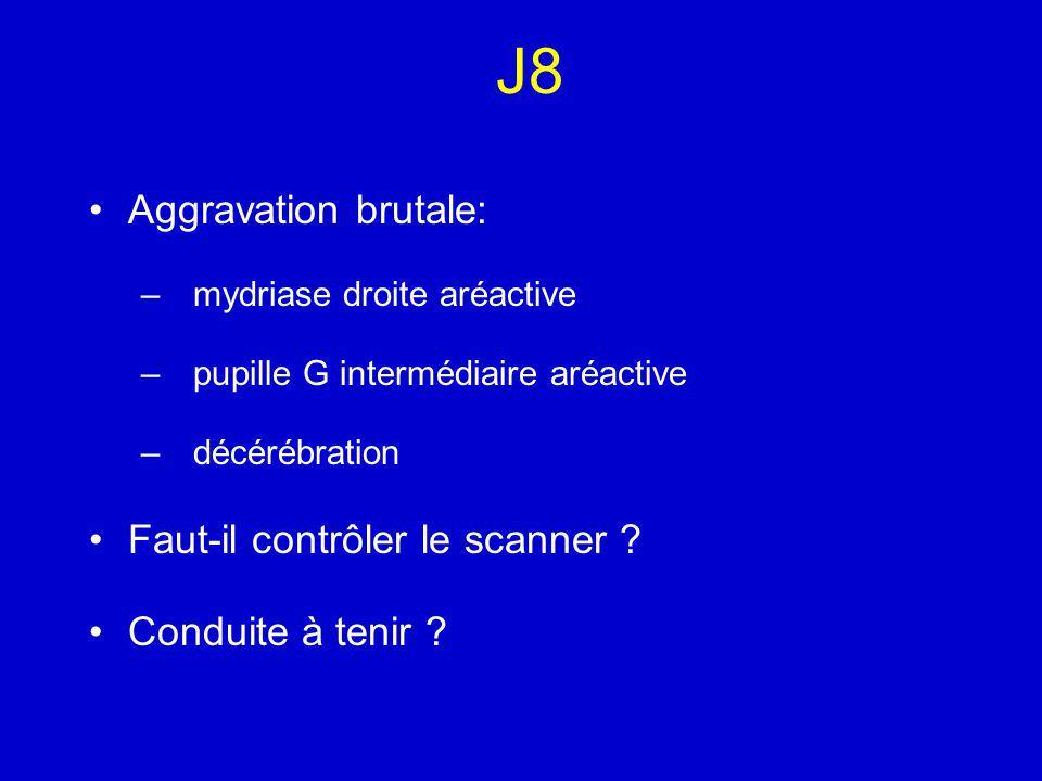 J8 Aggravation brutale: Faut-il contrôler le scanner